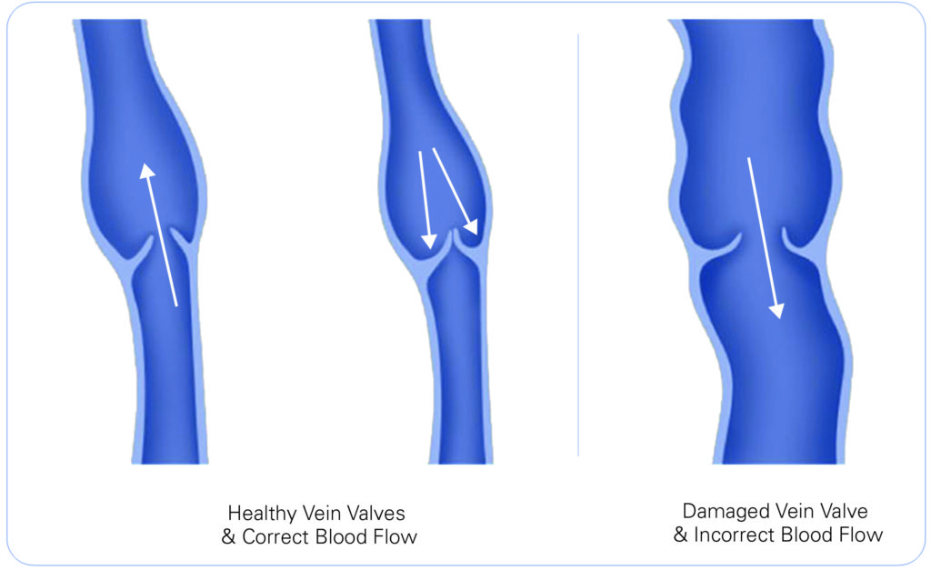 healthy vs damanged vein valve